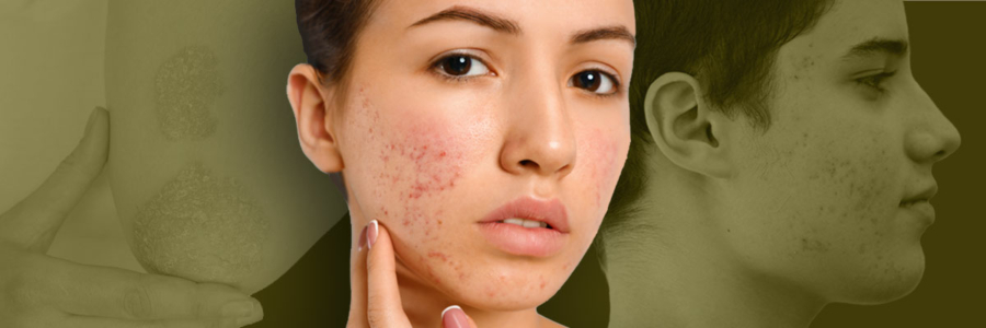 Négy bőrprobléma, amin segít a CBD (más válogatott gyógynövényekkel)